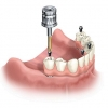 How Long Does Dental Implantation Take