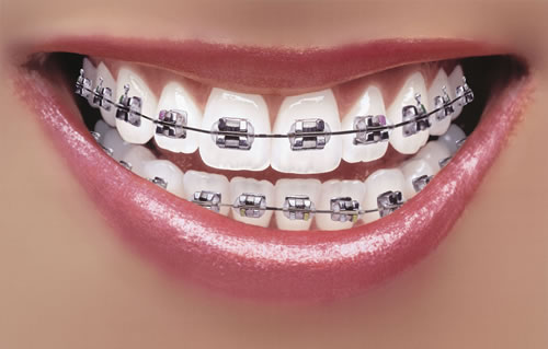 How Long Does It Take To Get Braces