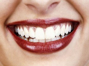 How-Long-Does-Teeth-Whitening-Last