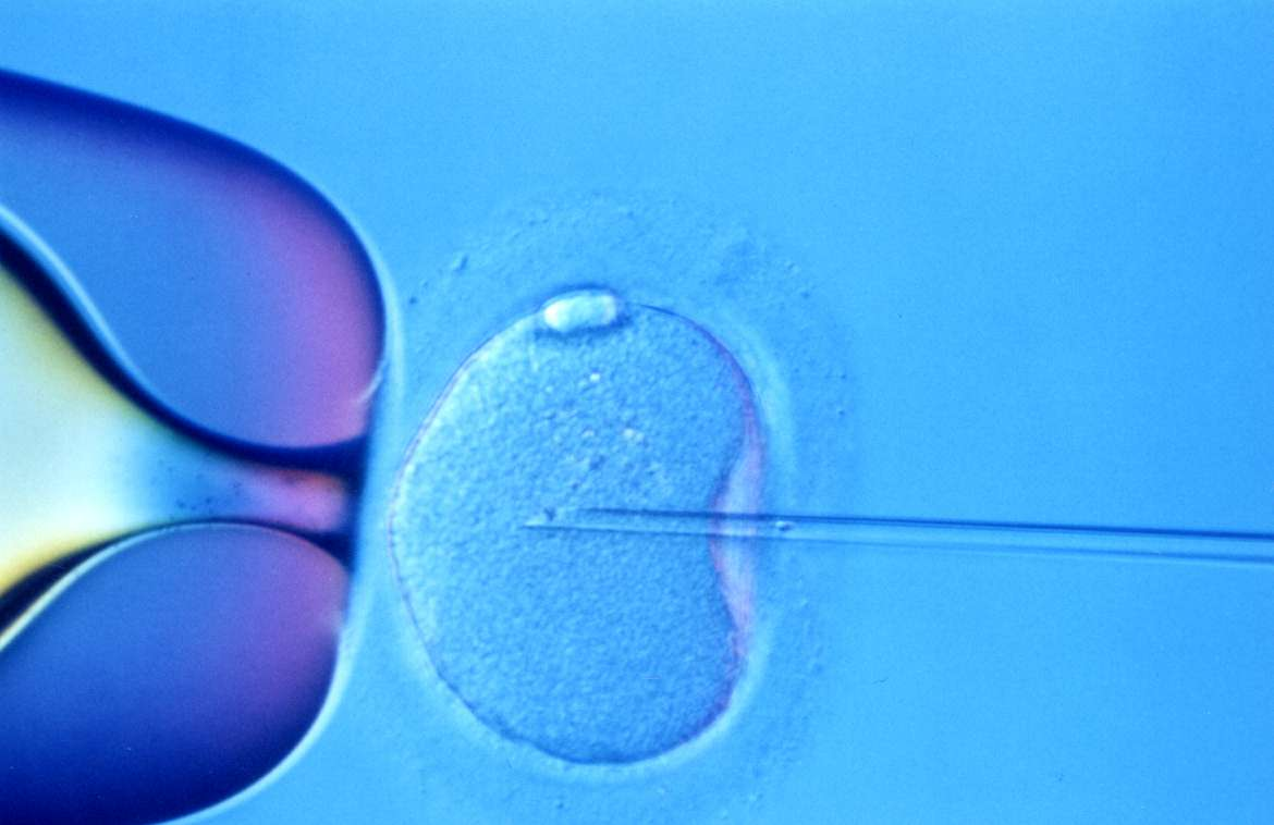 How-Long-Does-IVF-Take
