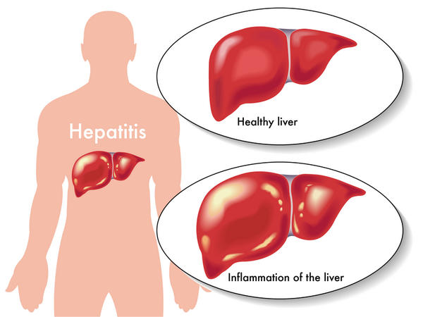 How Long Does A Hepatitis B Vaccine Last