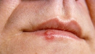 how-long-does-a-cold-sore-last-img