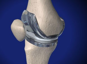 how-long-does-a-knee-replacement-last-img