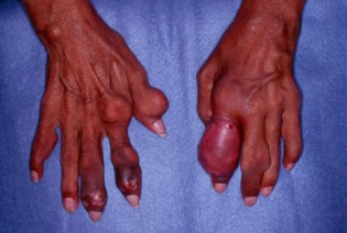 how-long-does-gout-last-img