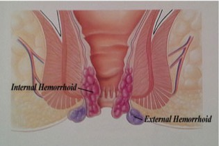 how-long-does-it-take-for-hemorrhoids-to-heal-img