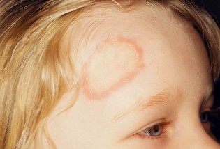 how-long-does-ringworm-last-img