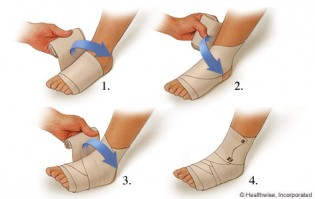 how-long-does-sprained-ankle-take-to-heal-img